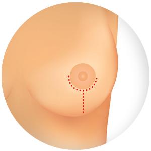 Principais sintomas do câncer de mama