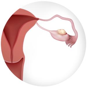 Cancer epitelial de ovario slideshare. Cancer epitelial de ovario sintomas